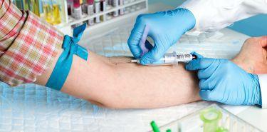 Gdzie wykonać badanie w kierunku HIV