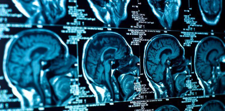 Międzynarodowy tydzień świadomości nowotworów mózgu