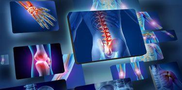 Przerzuty nowotworowe do kości