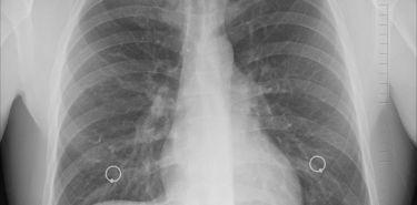 Zapalenie płuc - leczenie i powikłania